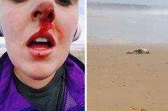 Vérző orral távozott a nő, aki meg akarta védeni a fókabébit az állatkínzóktól